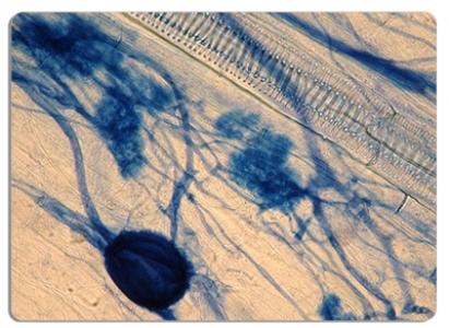 Champignon, bactérie, plante : la symbiose avant tout !